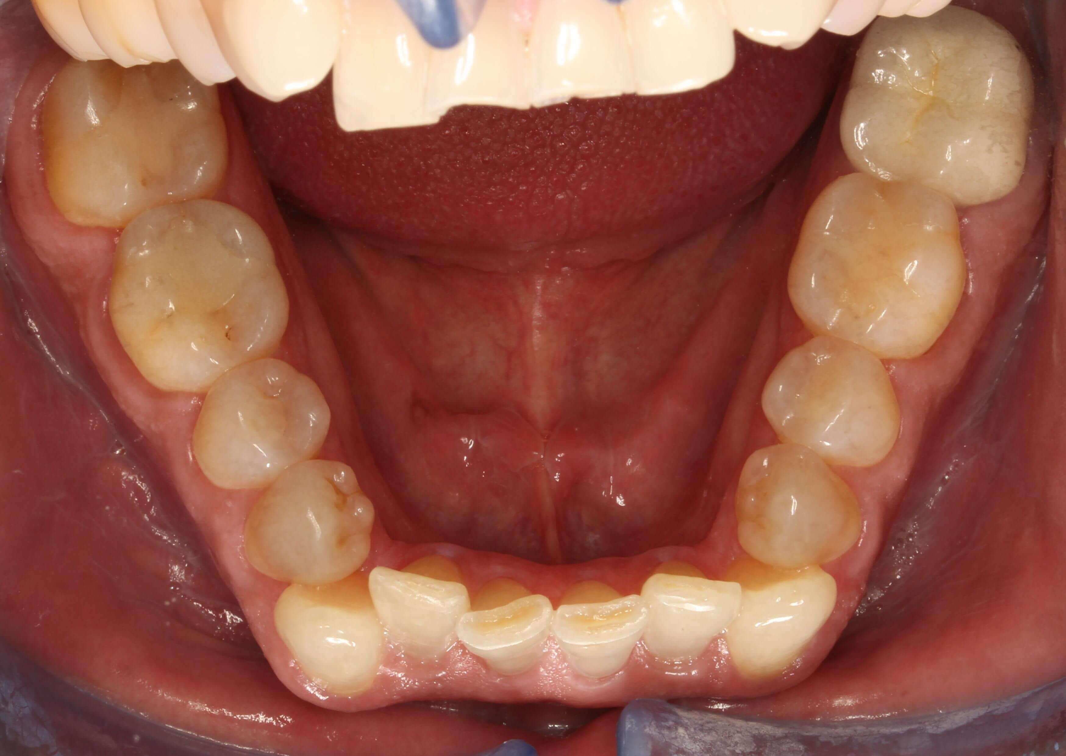 Lower Occlusal View Before