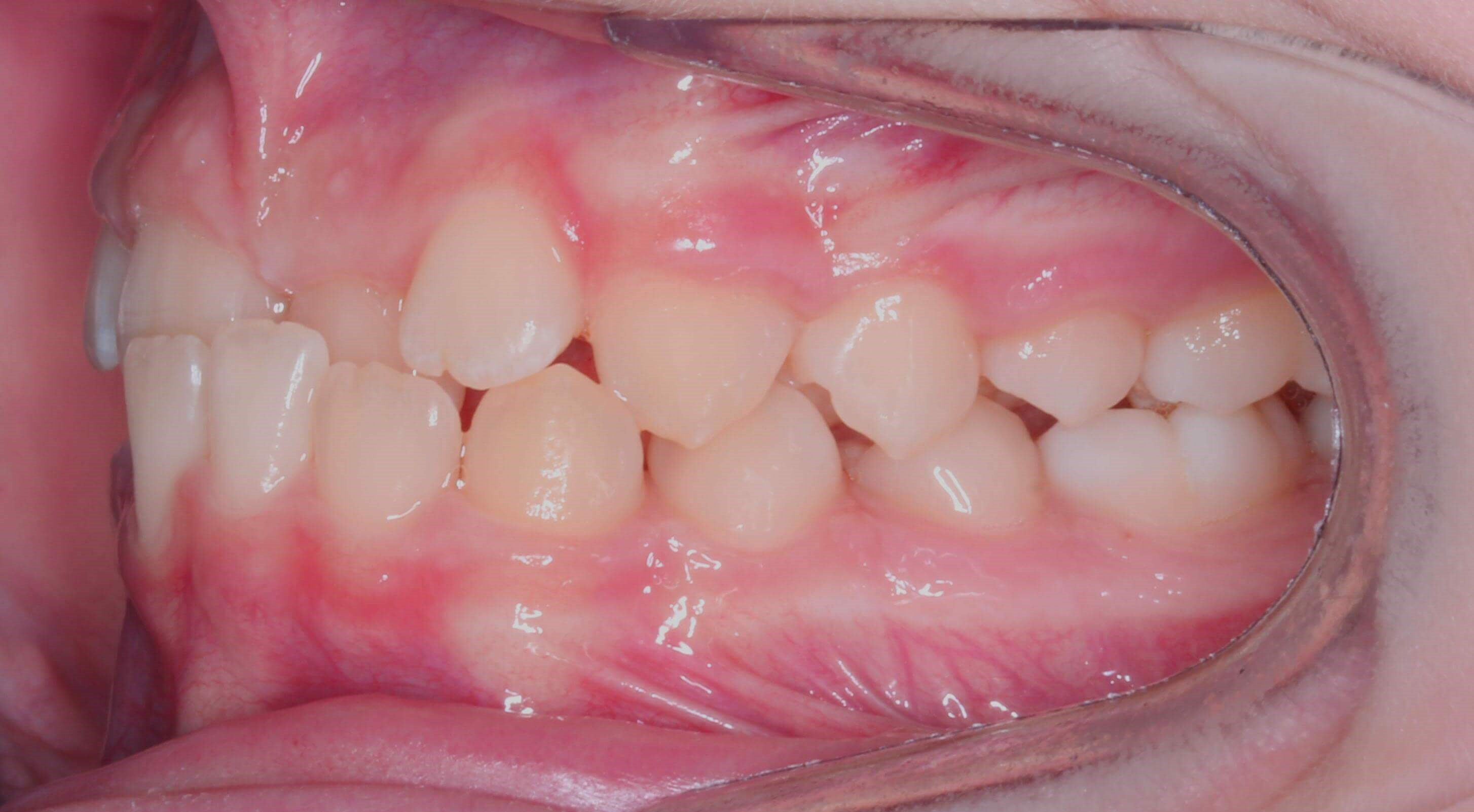 Left Buccal View Before