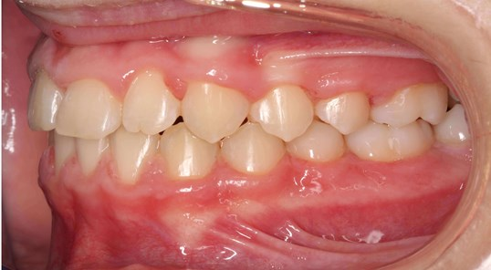 Left Buccal View After