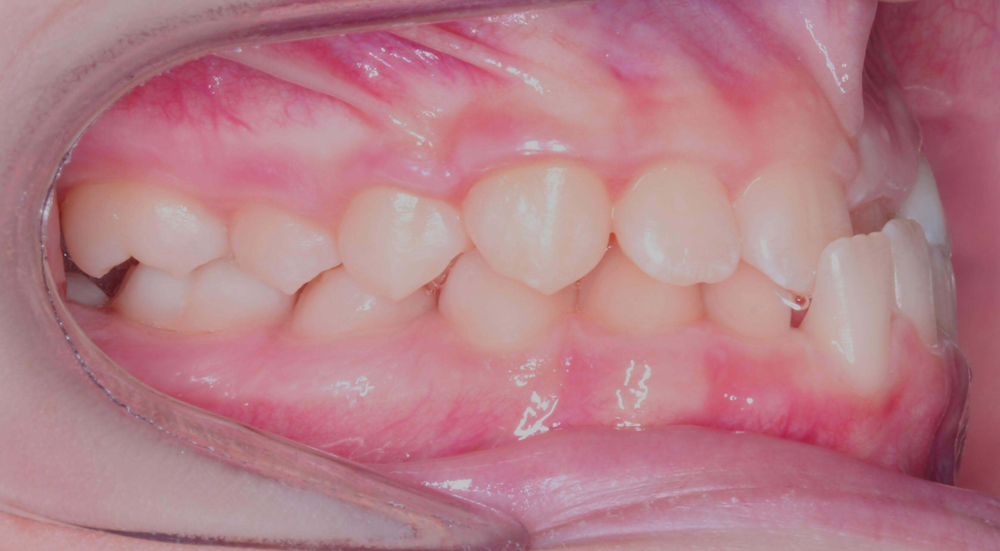 Right Buccal View Before