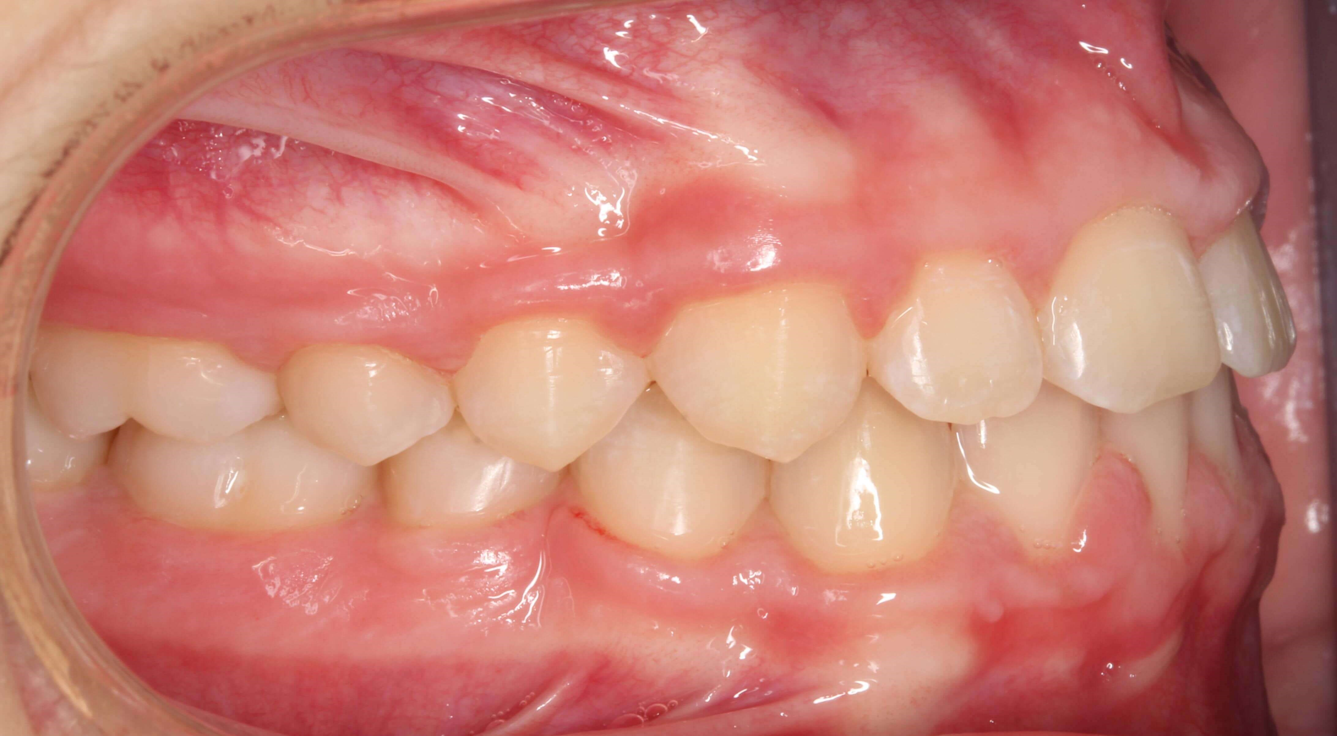 Right Buccal View After