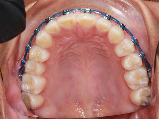Upper Occlusal View After