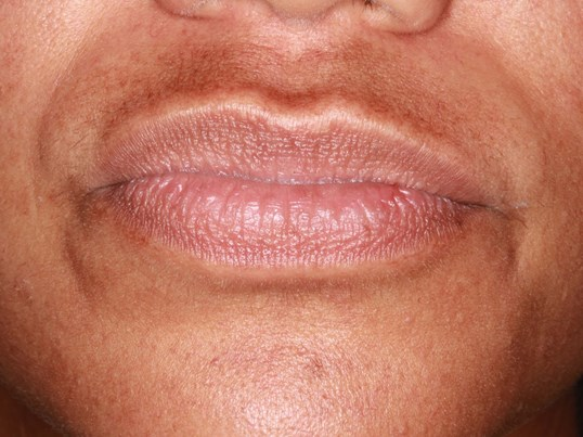 Lip and Marionette Line Filler Before
