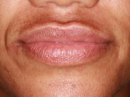 Lip and Marionette Line Filler After