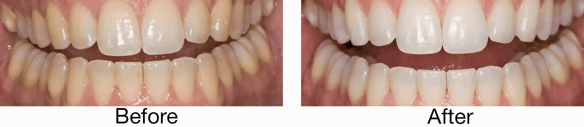 Opalescence Teeth Whitening In Las Vegas Nv